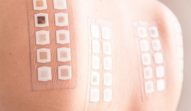 testovanie alergií na chrbte mladej ženy